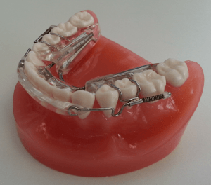 Inman Aligner on teeth example
