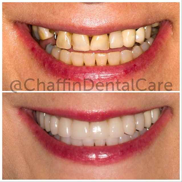 Teeth transormation after Implant Retained Bridge and Porcelain Crowns