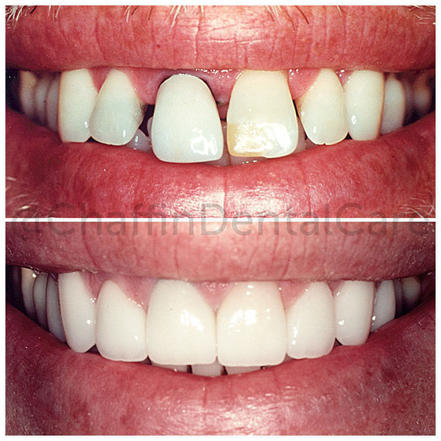 Dramatic Teeth transformation after Porcelain Dental Crowns