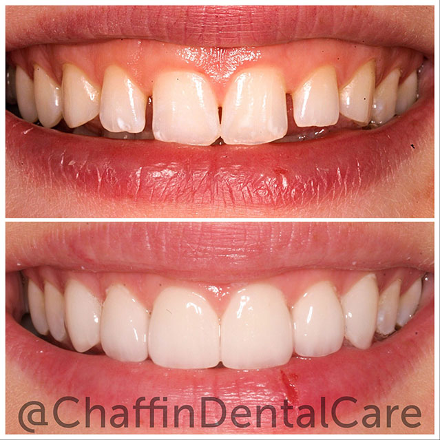 DURAthin Porcelain Veneers dramatic theeth change.